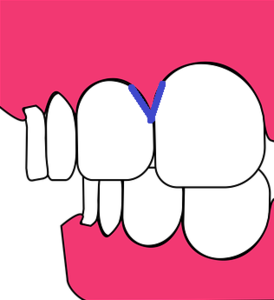 teeth-2864148_640.png